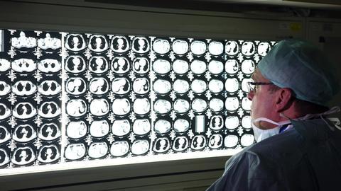 Ein Arzt sieht sich Computertomographie-Aufnahmen an