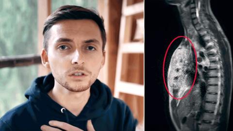 Fotografisches Portrait von Philipp Mickenbecker. Daneben ein medizinisches Bild, auf dem der Krebs zu sehen ist.