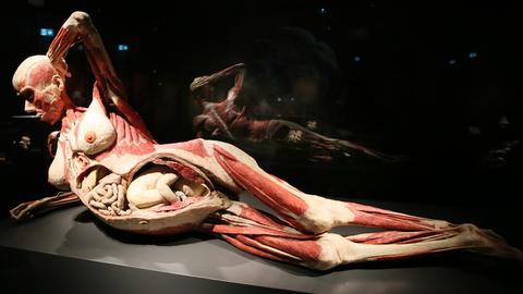 Ausstellungen Körperwelten Kassel