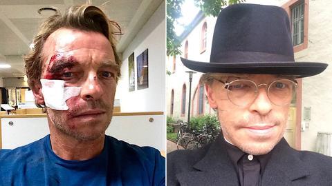 Andre Eisermann nach Unfall und nach Maske