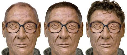 Gesichtsrekonstruktion