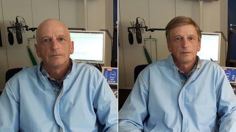 Chemo-Patient Ernst Stephan ohne und mit Perücke