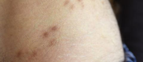 Narben im Hüftbereich eines Mannes erinnern an eine überstandene Krätze-Erkrankung.