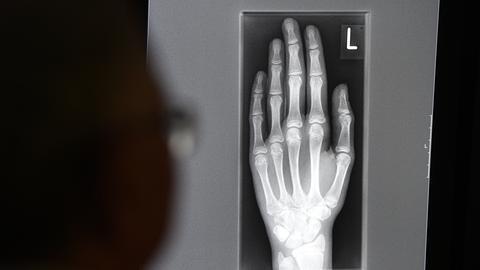 Röntgenaufnahme einer Hand