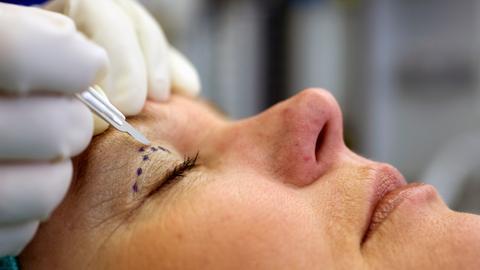 Ein Schönheitschirurg setzt das Skalpell an einer zuvor markierten Stelle am Augenlid einer Patientin an