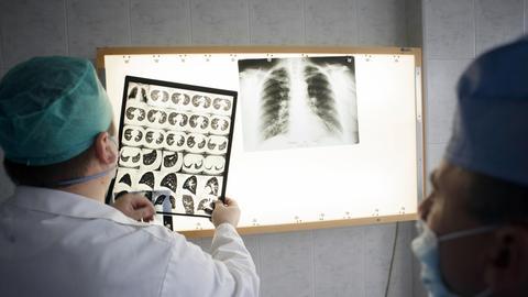 Ärzte besprechen Röntgenbilder in einem Tuberkulose-Fall
