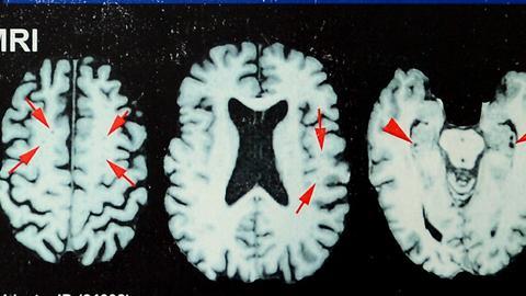 dpa Gehirn
