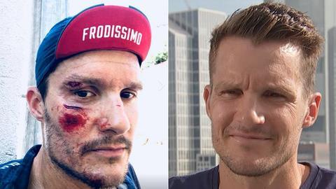 Jan Frodeno mit Verletzung und beim Ironman Frankfurt